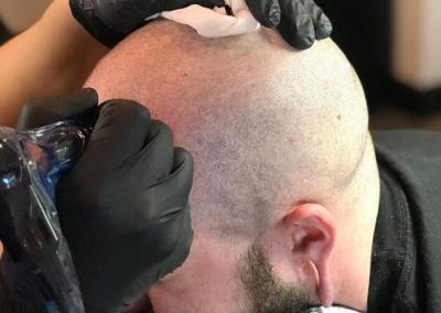 Fix Male Pattern Baldness